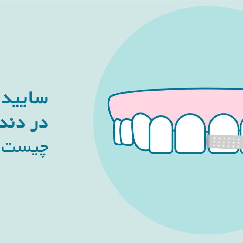 ساییدن دندان