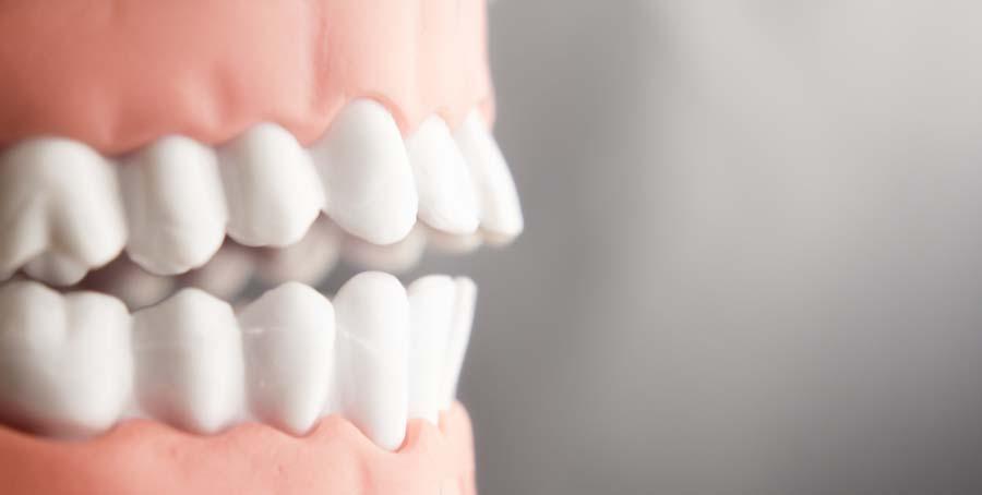 جلو زدگی دندانهای پیشین
